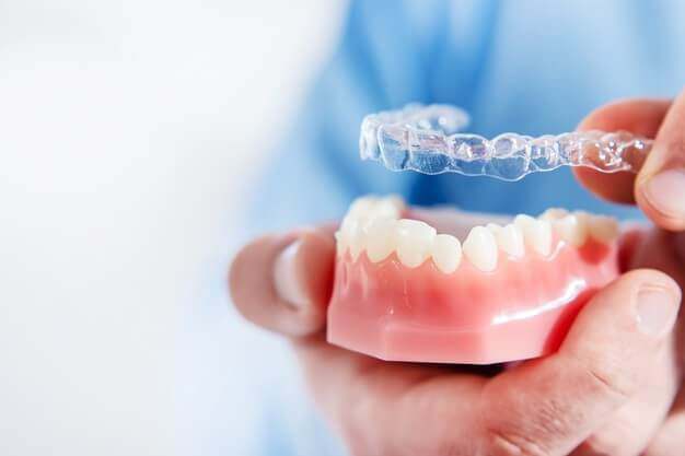 Teeth shifting after invisalign